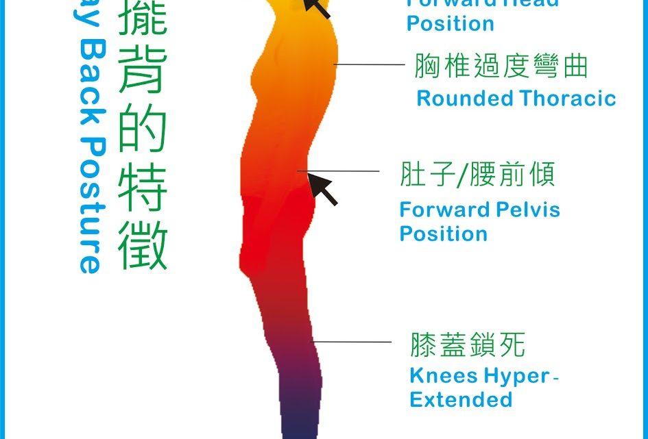 容易造成腰痠背痛、肩頸痠痛問題的搖擺背(sway back)站姿,物理治療-運動治療分享(含影片)